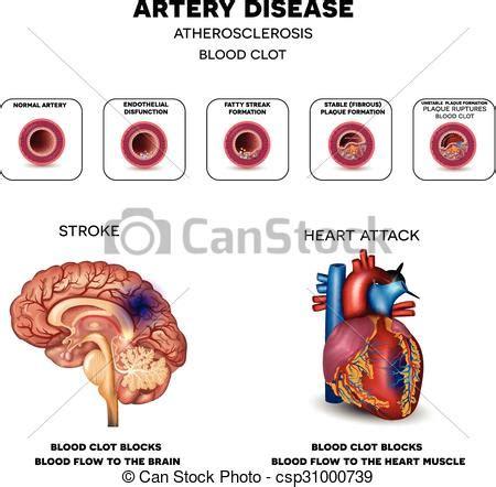 Cardiovascular disease essay writing