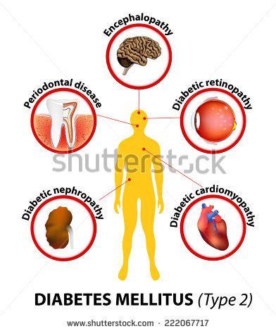 Heart disease essay examples